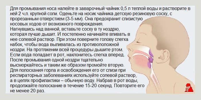 Запах ацетона у грудничка