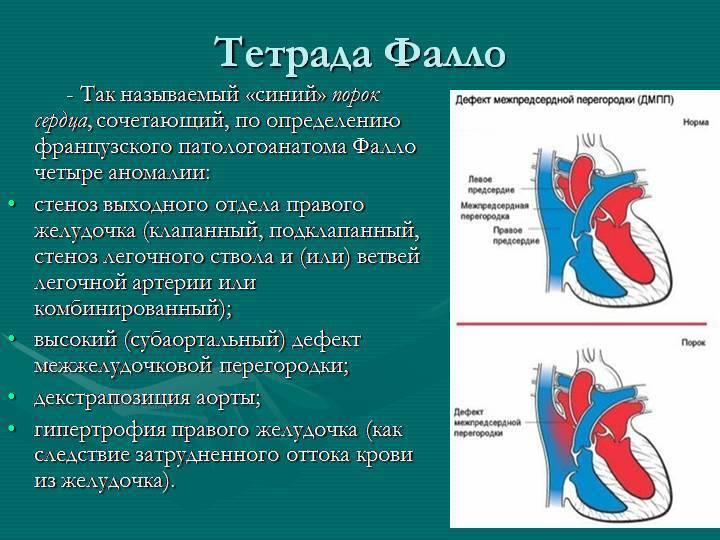Классификация пороков сердца у новорожденных, причины, признаки и методы лечения болезни