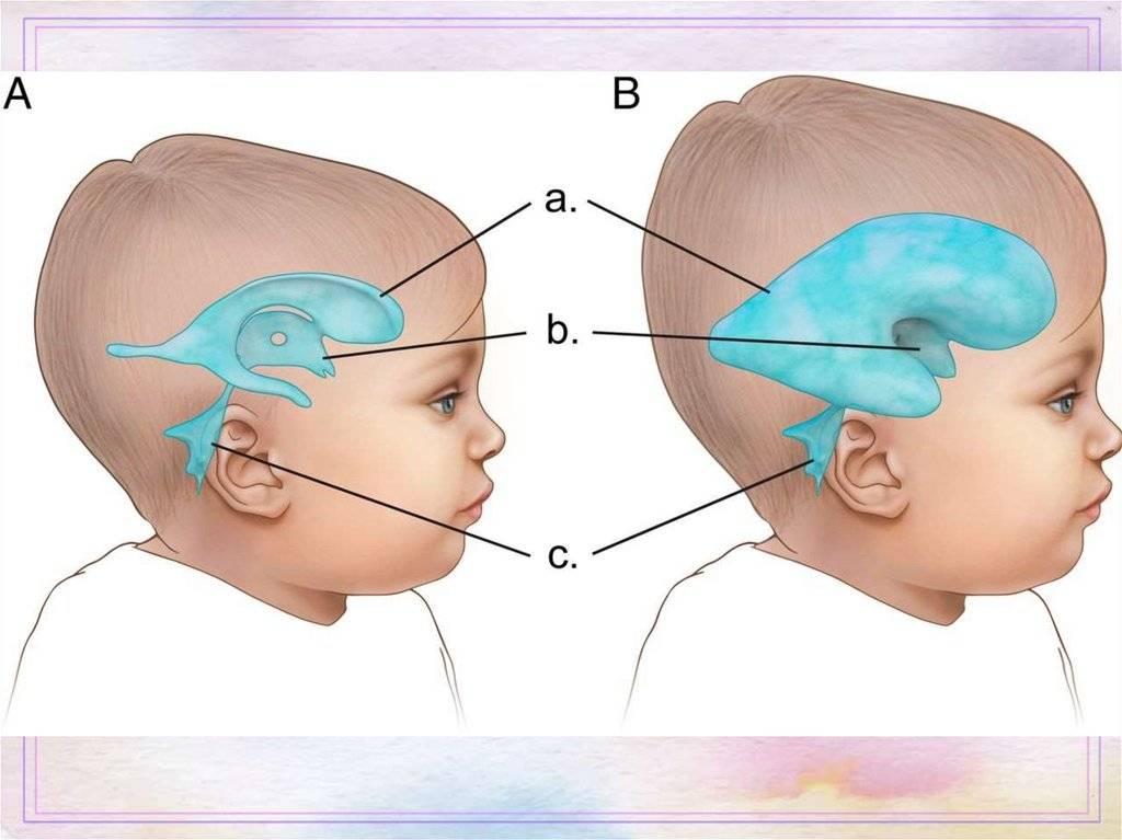 Отек головного мозга у новорожденных: причины, диагностика, последствия