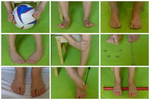 Плоско — вальгусная деформация стоп у детей: лечение, причины, симптомы