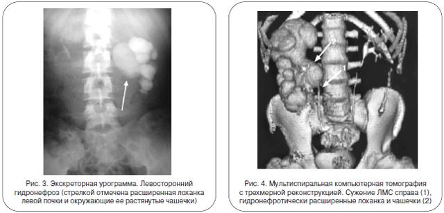 Гидронефроз почек у плода при беременности, уретерогидронефроз