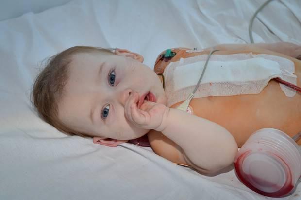 Порок сердца у новорожденных детей: причины впс, последствия и признаки, операция | заболевания | vpolozhenii.com