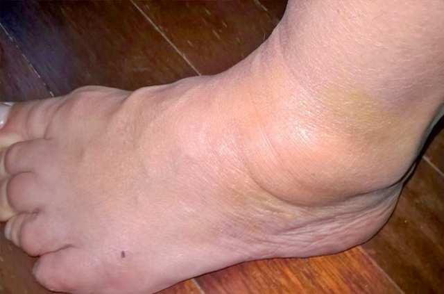 Причины гигромы стопы и ее лечение