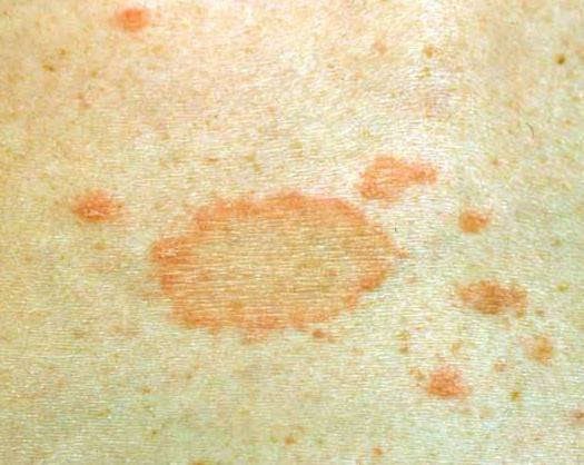 Розовый лишай. розовый лишай у взрослых и детей – как выглядит, как его лечить? :: polismed.com
