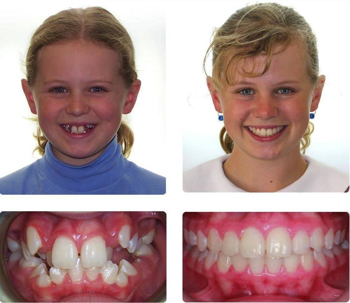 Преимущества и недостатки пластинок для выравнивания зубов