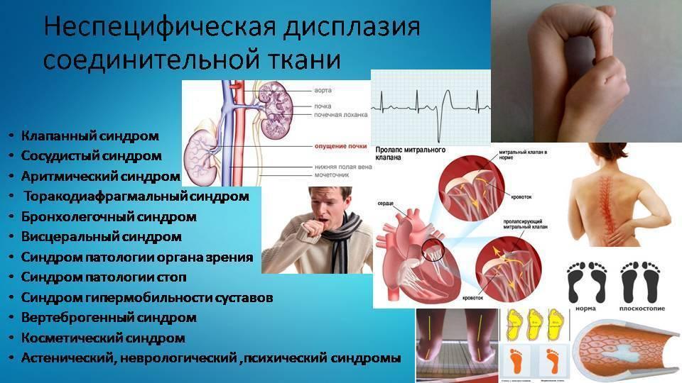 Дисплазия соединительной ткани у детей - симптомы и лечение