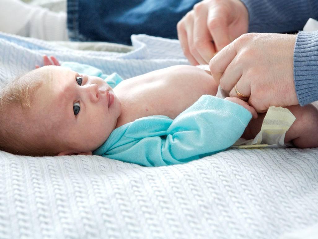 Что делать, если у новорожденного кровит пупок