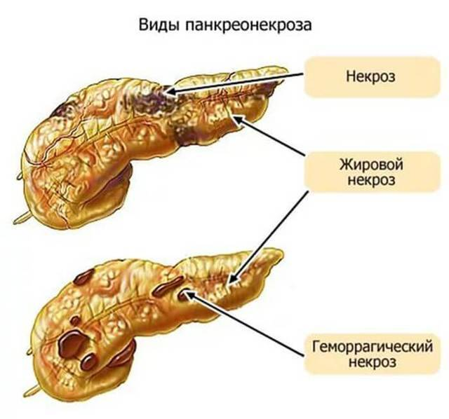 Панкреатит реактивный у ребенка