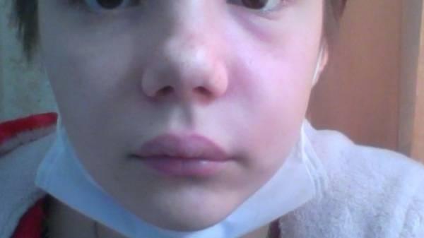 Припухла щека у ребенка - стоматолог