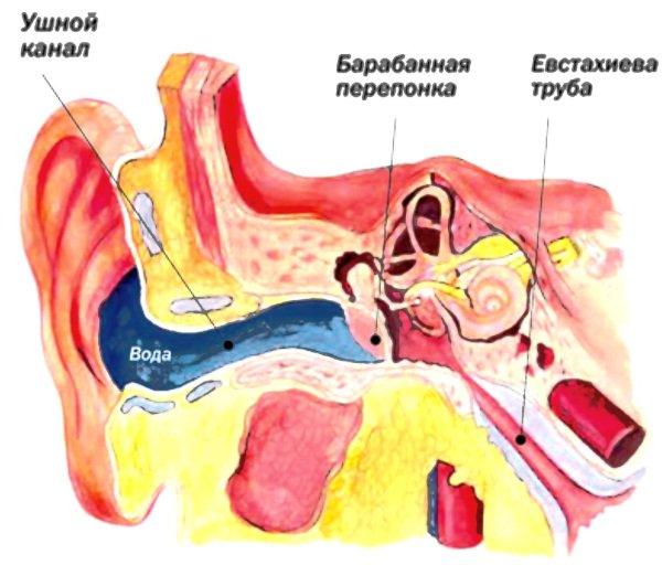 Болит стреляет ухо у ребенка что делать в домашних условиях