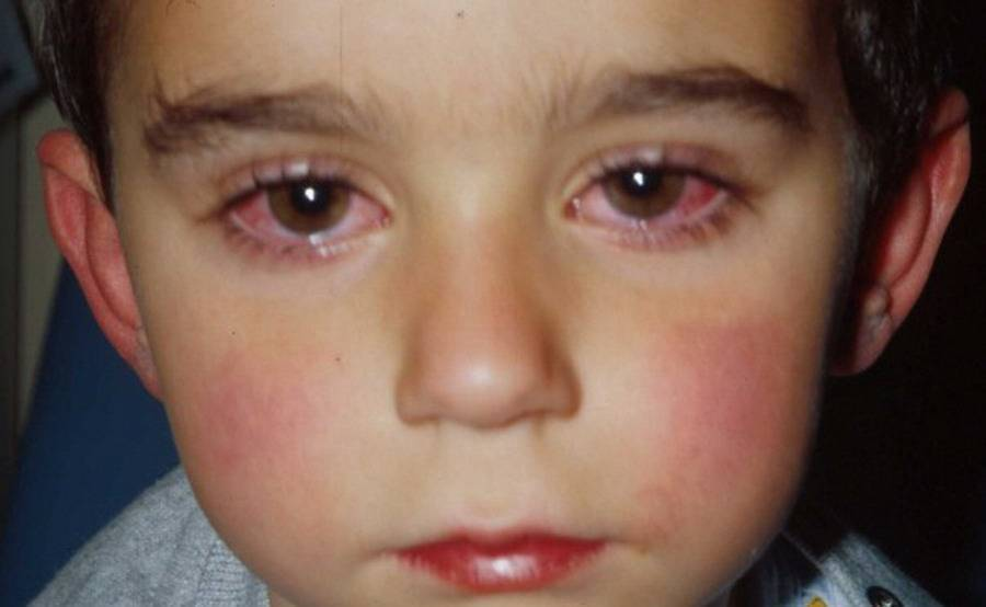 Чем лечить аллергический конъюнктивит у ребенка?