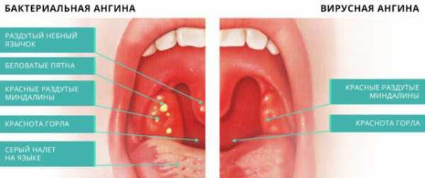 Золотистый стафилококк в горле у ребенка: лечение и симптомы бактерий в мазке из зева