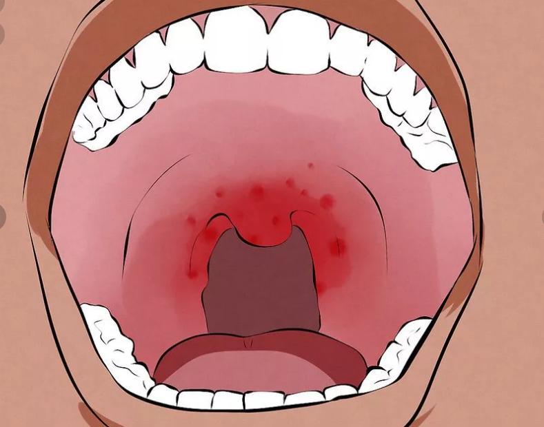 Красные точки во рту у ребенка - сыпь на слизистой неба и горла: фото с пояснениями