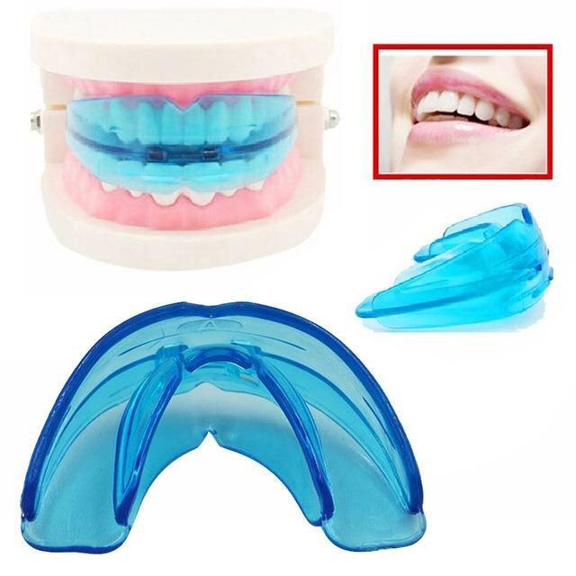 Пластины на зубы детям, фото до и после, для чего применяются и как носить?