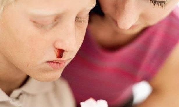 Отчего возникают сопли с кровью у ребёнка: все возможные причины и способы помощи