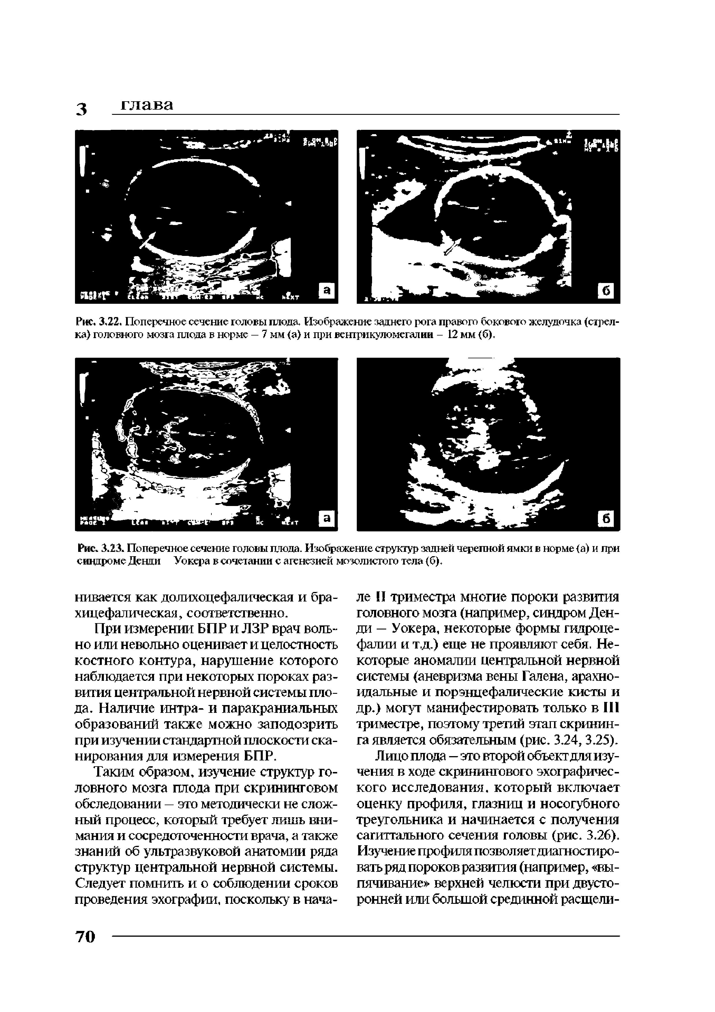 Желудочки головного мозга у новорожденных: норма и патологии