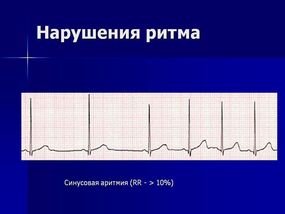 Синусовая аритмия у детей и подростков: причины нарушения ритма сердца, норма на экг, профилактика | заболевания | vpolozhenii.com