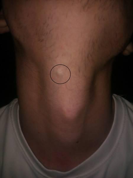 У ребенка на шее под кожей появилась шишка в виде шарика – что это может быть? - все о суставах