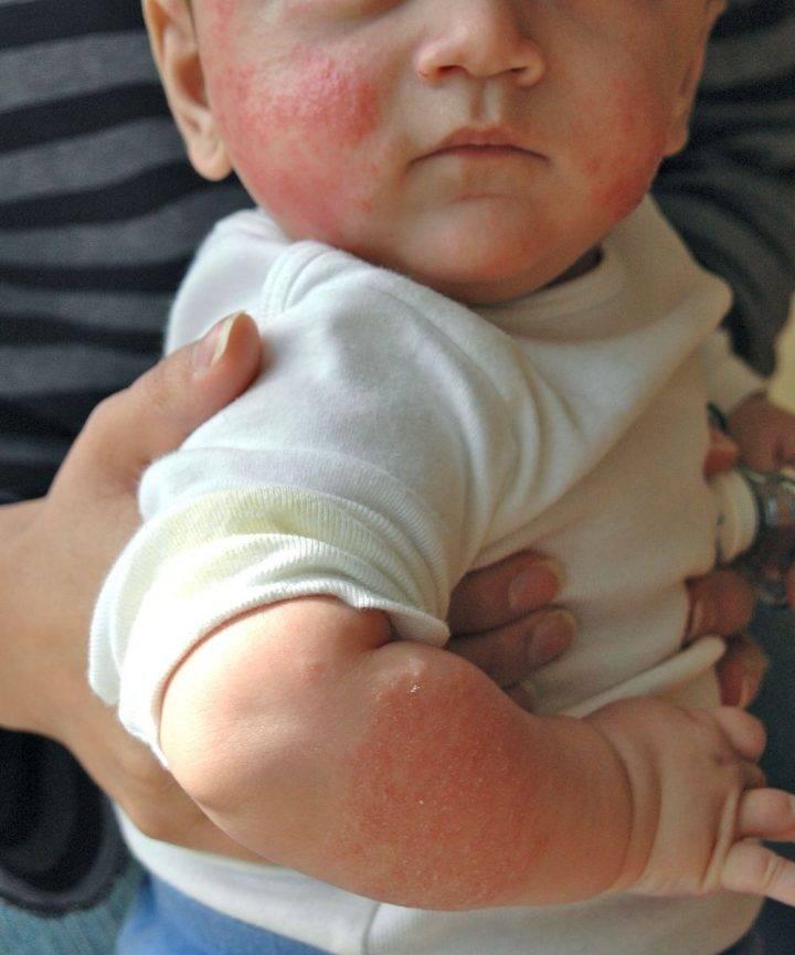 Аллергия у детей до года: симптомы и лечение