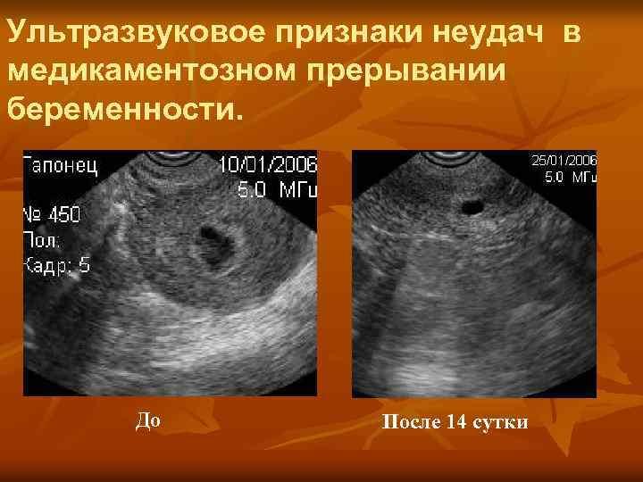 Матка после аборта: почему не сокращается и как выглядит, а также остатки в матке после медикаментозного прерывания беременности, эрозия шейки, спайки и сгустки крови, что делать c гипоэхогенными включениями и сколько длятся сокращения - стоп-беременность
