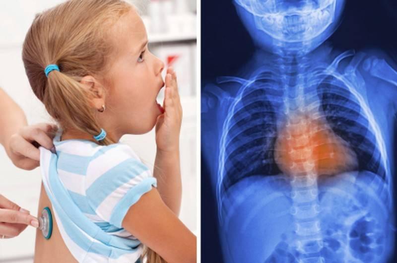 Ребенок хрипит при дыхании но не кашляет чем лечить