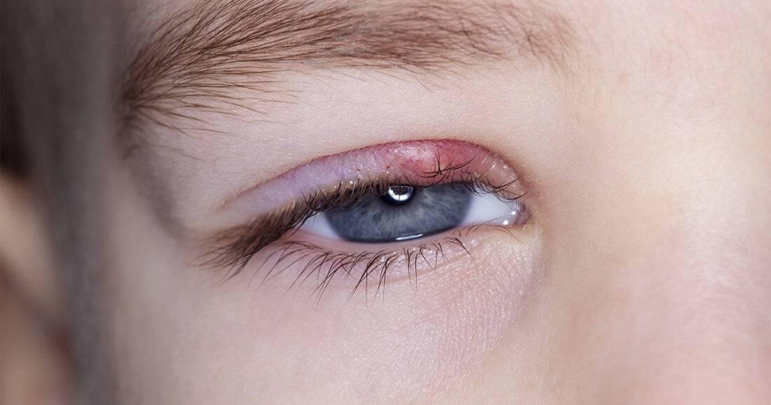 Чем лечить ячмень на глазу у ребенка на верхнем веке