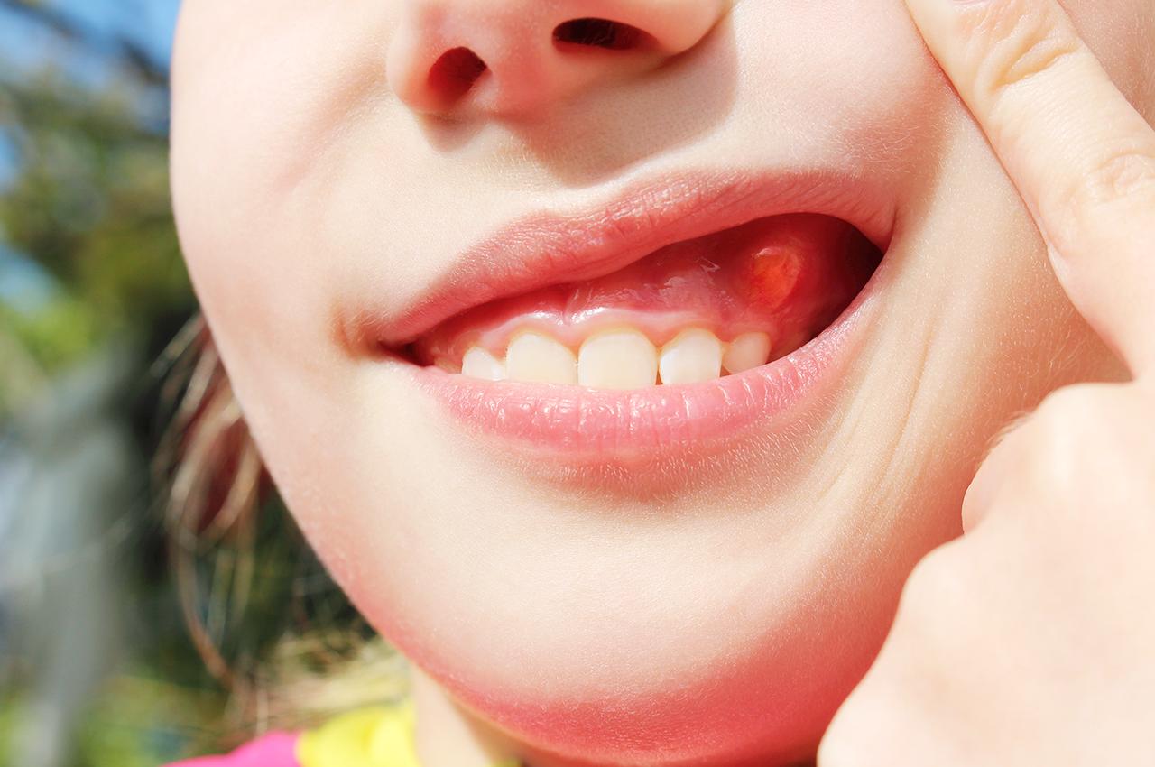 Флюс зуба на десне у ребенка, что делать