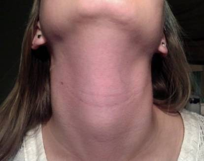 6 главных причин опухоли под ухом возле челюсти