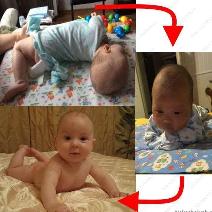 Ребенок не держит голову: причины