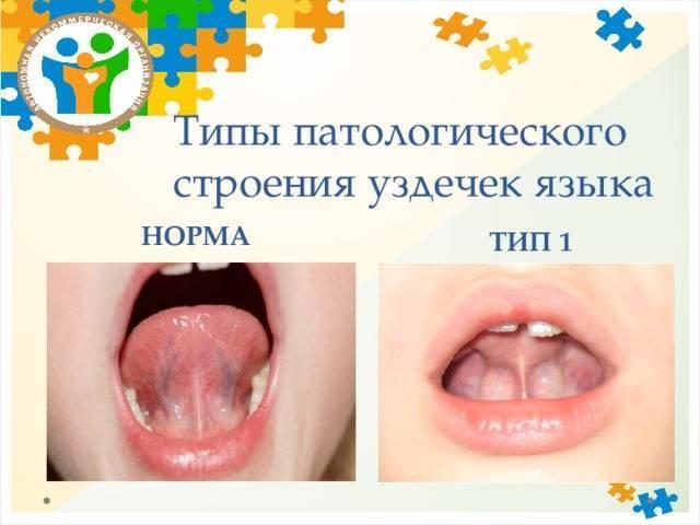 Короткая уздечка языка у ребенка. про укороченную уздечку со всеми подробностями.