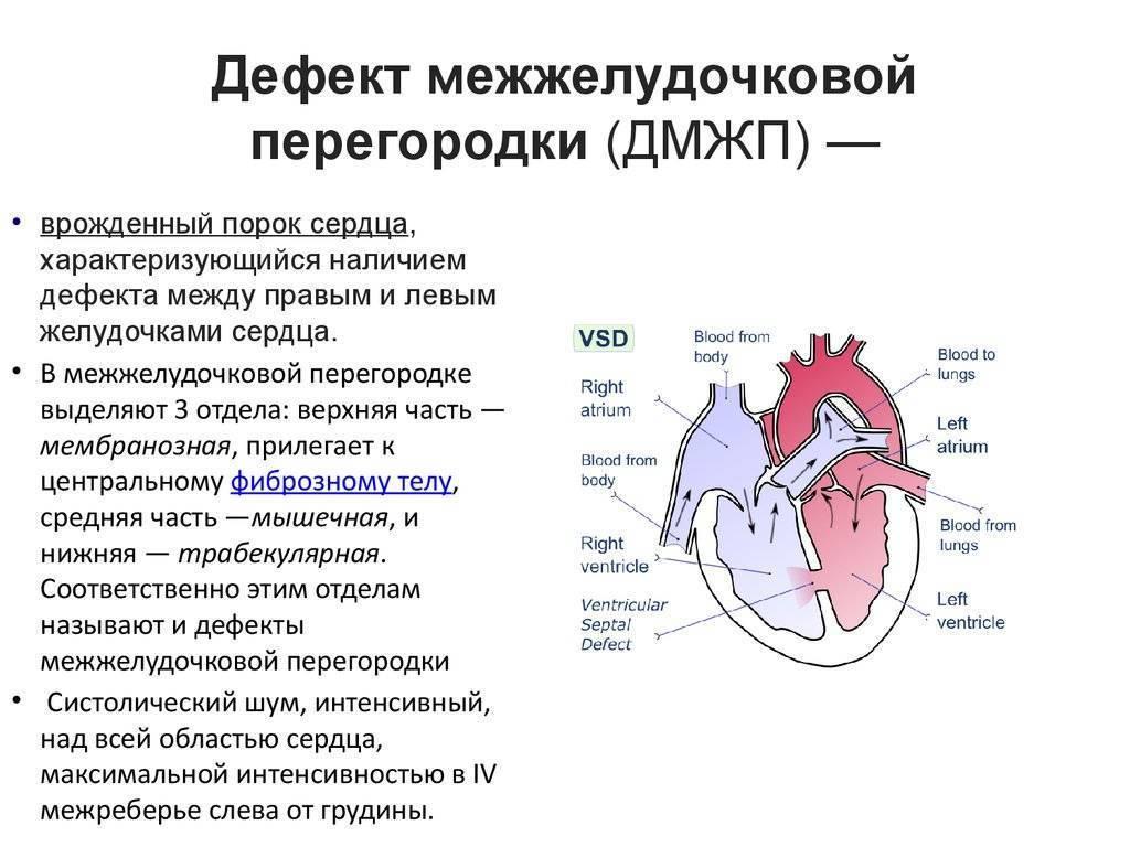 Как распознать врождённый порок сердца у ребёнка? практические рекомендации от детского кардиолога