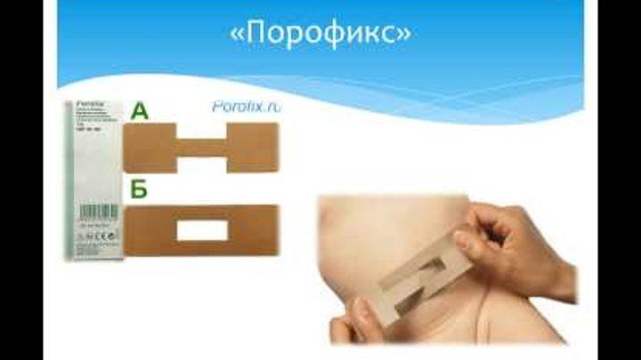 Пупочная грыжа у новорожденного: лечение с помощью пластыря