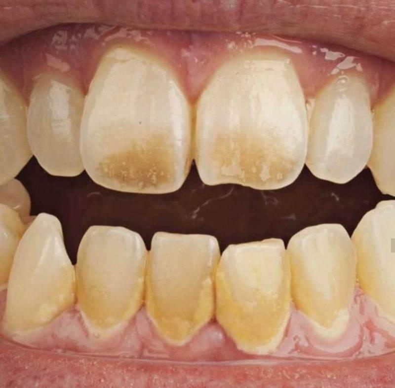 Белые пятна на зубах у ребенка: причина появления, стоит ли об этом волноваться, как убрать пятно? советы детских стоматологов