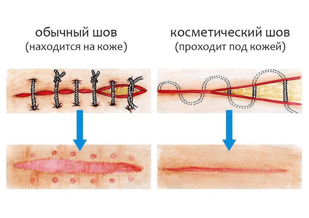 Через сколько времени рассасываются швы. швы саморассасывающиеся и синтетические, внутренние и внешние: как долго заживают после родов и чем их обрабатывать