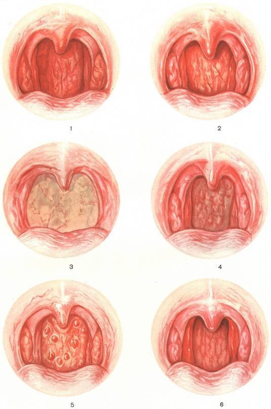 Катаральная ангина у детей: симптомы и лечение заболевания горла (фото)