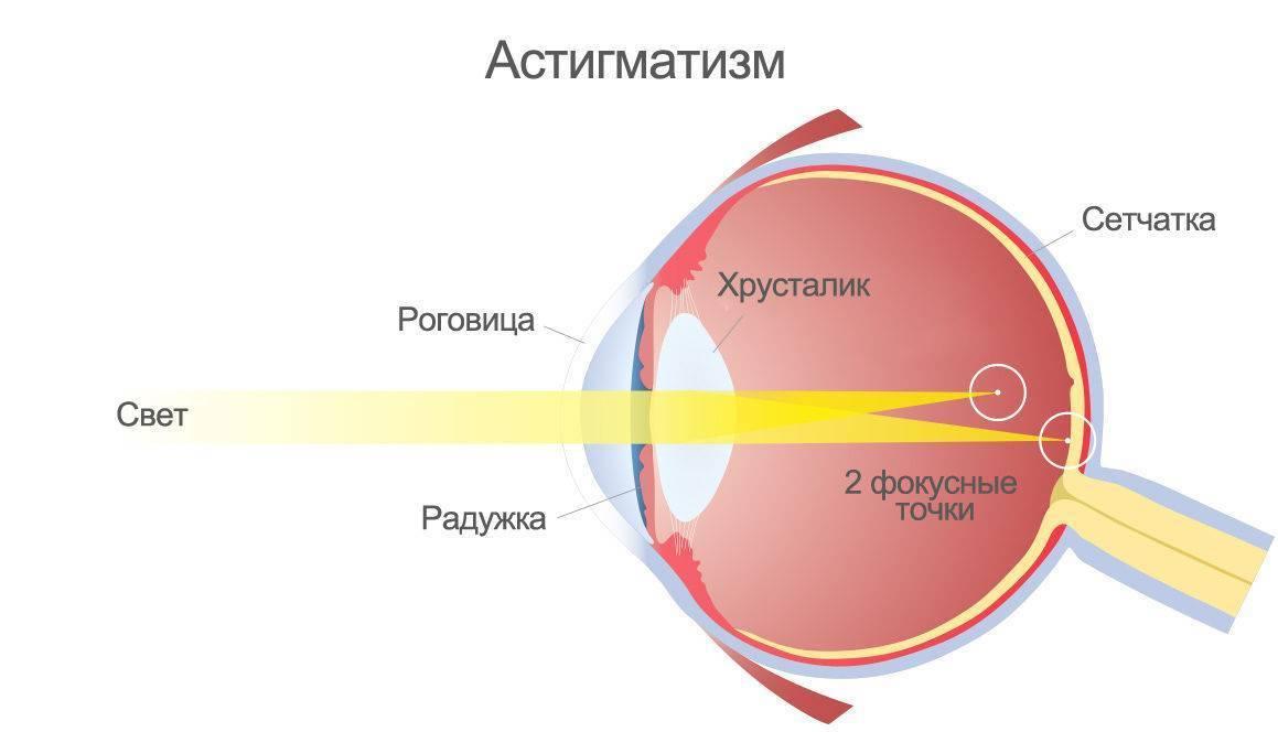 Дальнозоркость у детей (гиперметропия): нормы, лечение, симптомы, причины, классификация, профилактика, до года