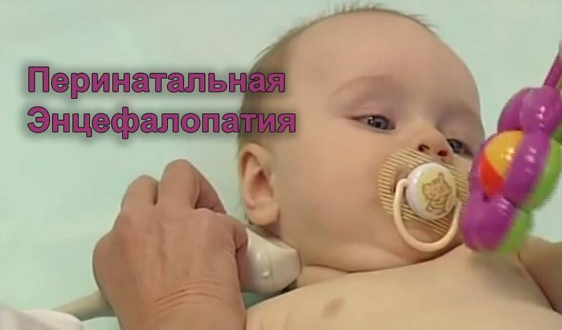 Гипоксически-ишемические поражения головного мозга у новорожденных
