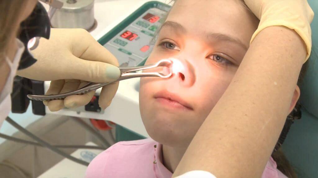 Как удаляют аденоиды у детей: все об операции