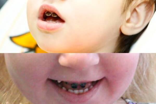 Серебрение зубов у детей: профилактика кариеса у детей - много зубов