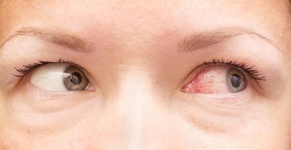 Лопнул сосуд в глазу у ребенка: возможные причины, лечение и профилактика