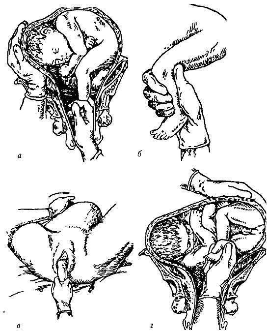 Поперечное и тазовое предлежание плода: упражнения для беременных