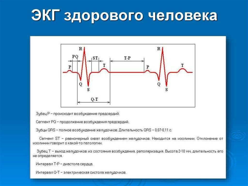 Экг: расшифровка у взрослых, нормы (таблица)