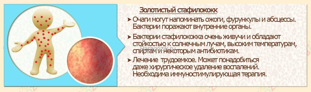 Золотистый стафилококк у грудничка в кале: симптомы, лечение