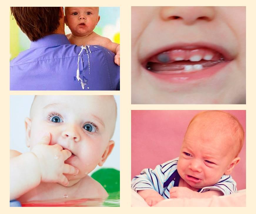 Может ли быть рвота при прорезывании зубов — зубы