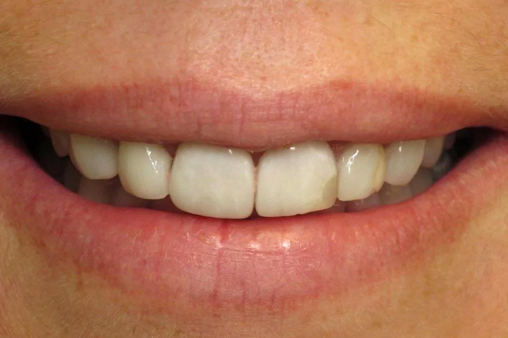 Налет пристли у детей на зубах: причины и лечение
