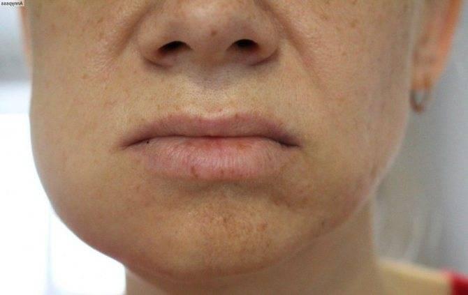 Болит щека у ребенка: возможные причины, способы и методы лечения, профилактика. боль в щеке. причины боли в щеке