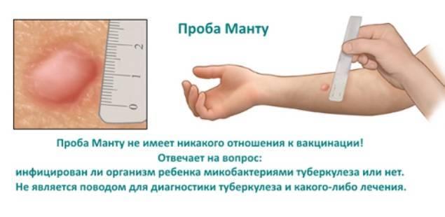 Как сделать чтобы прививка манту стала меньше?