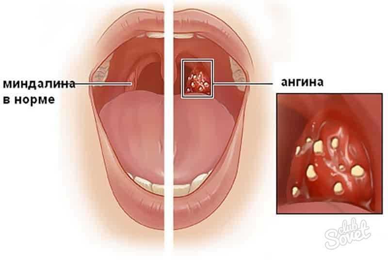 Как выглядит нормальное горло у ребенка 11 лет
