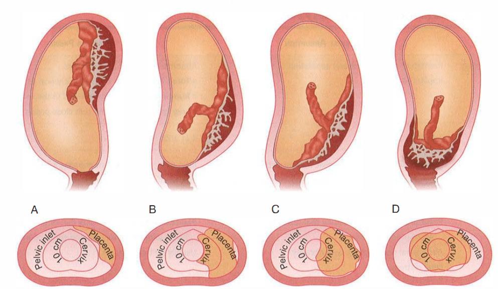 Допплерометрия для беременных: расшифровка и нормы показателей