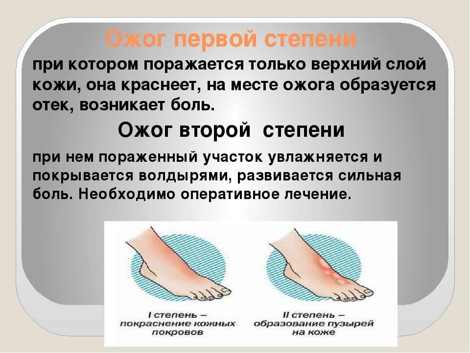 Термический и химический ожог 1 степени : первая помощь, лечение | компетентно о здоровье на ilive
